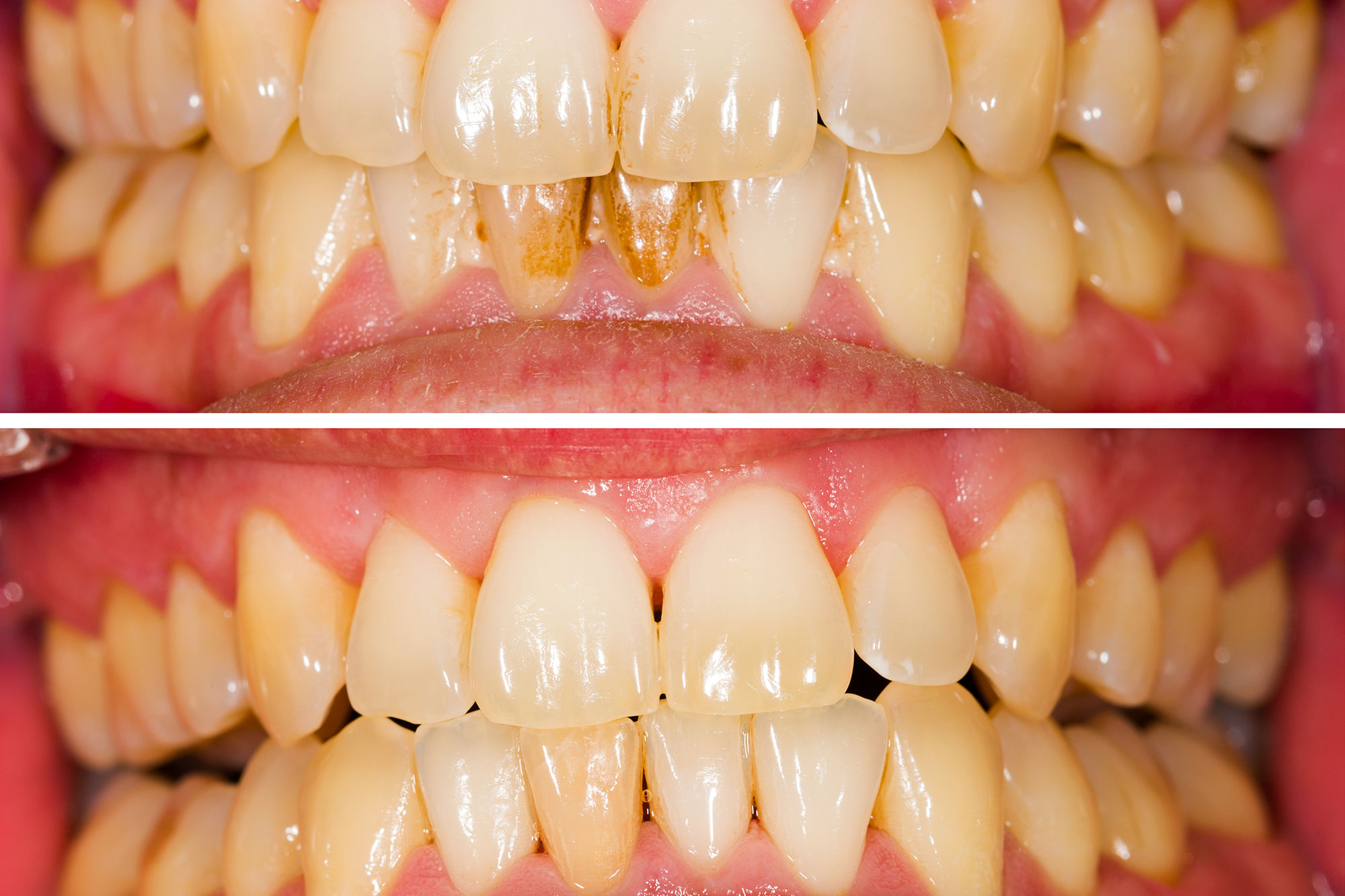 Dental-Planing-and-Dental-Scaling