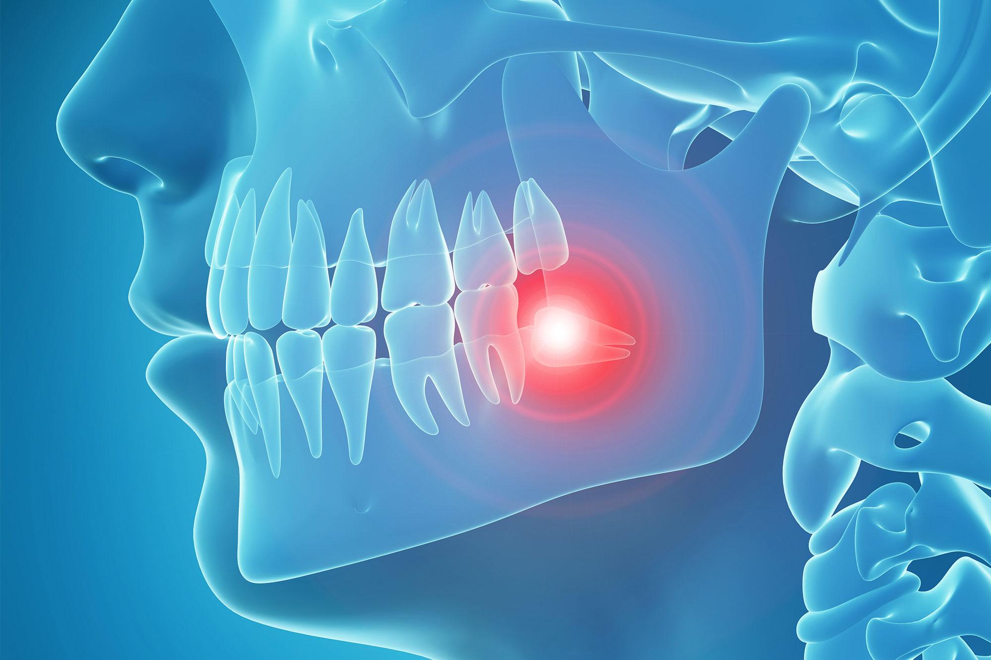 TMJ-Disorder