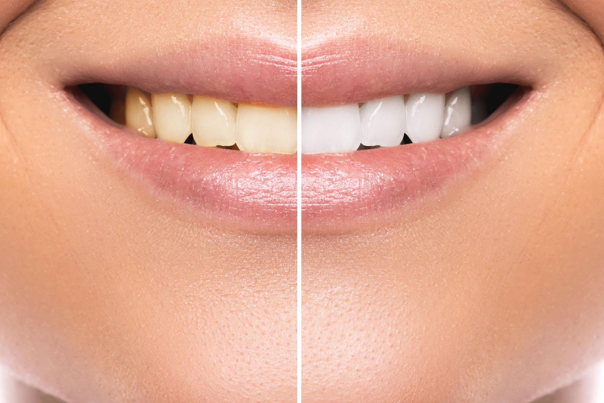 Cosmetic Dentist In Coral Gables  U0026 Miami