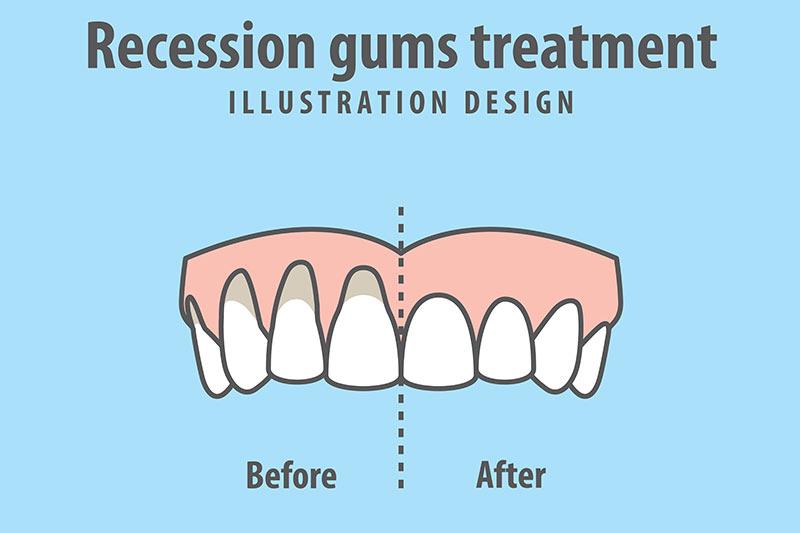 Recession-Gums-Treatment-Coral-Gables-FL