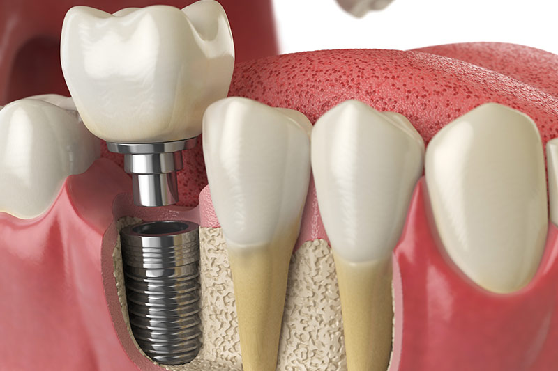 dental-implants-in-Coral-Gables-Florida