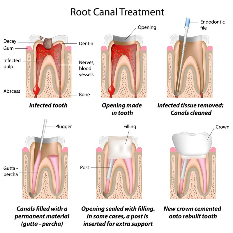 Root-Canal-Treatment-Coral-Gables-FL