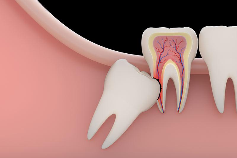 oral-surgeon-coral-gables-florida-impacted-wisdom-teeth