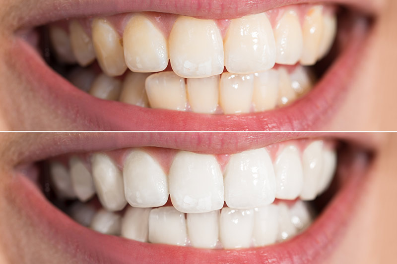 What-is-Zoom-Teeth-Whitening