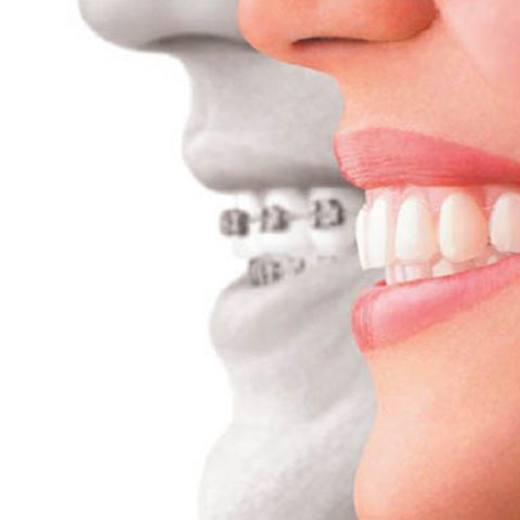 Invisalign-or-Braces-Which-Option-Is-Best-For-You