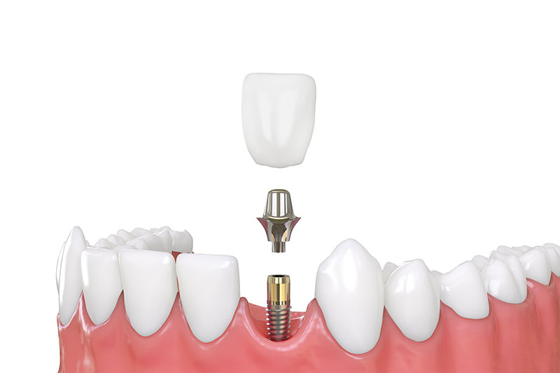 Different-Types-of-Dental-Implants