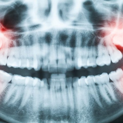 Types-of-Wisdom-Teeth-Removal-Coral-Gables-Florida
