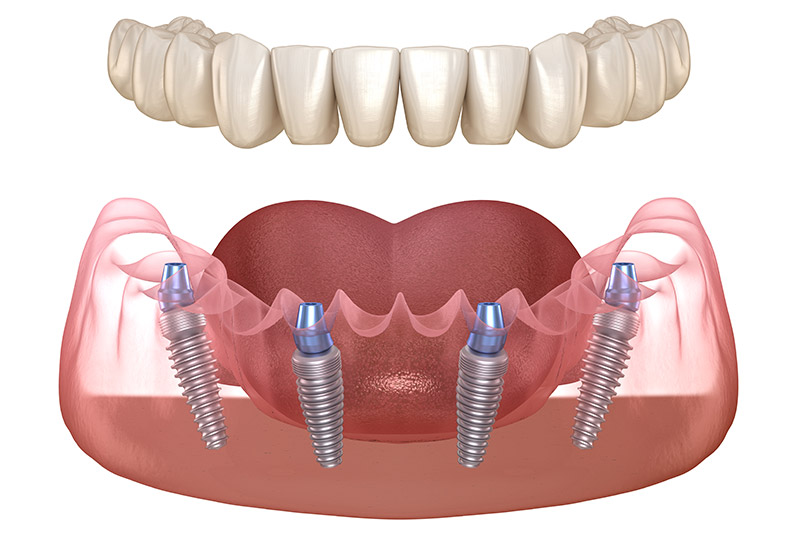 All-on-4-dental-implants-coral-gables-florida